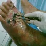 khasiat kulit manggis untuk diabetes