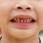 kerusakan gigi