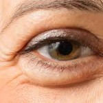 Saran dan Larangan bagi Penderita Glaukoma