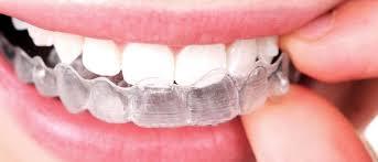 Merapikan Gigi Lebih nyaman Invisalign