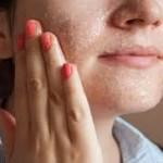 Manfaat garam untuk Kesehatan Kulit